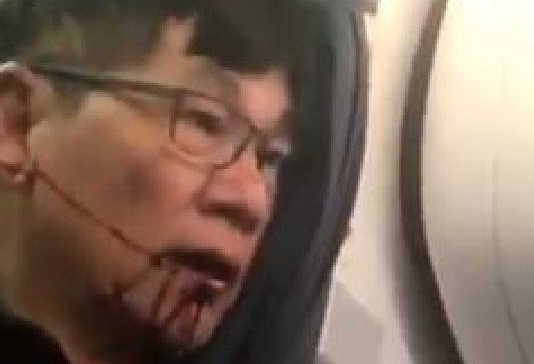 United Airlines (Image Source: news.com.au)