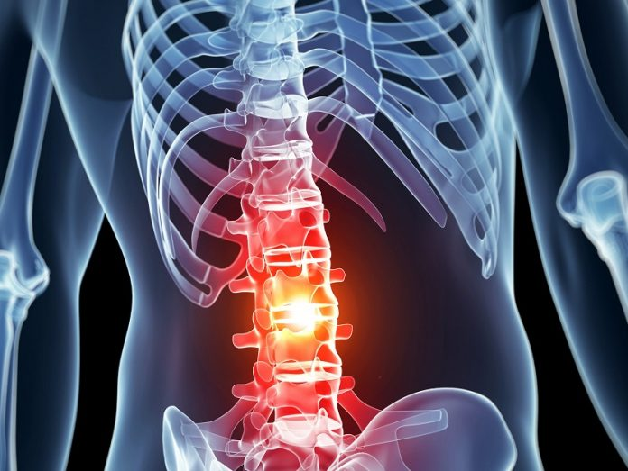 An Epipen for spinal cord injuries (Image Source: medicalhub)
